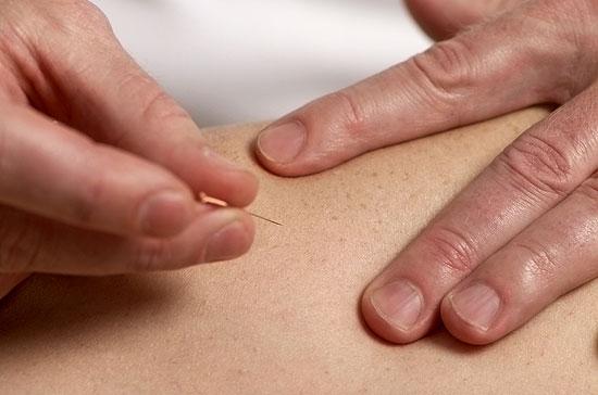 Praxis Dres. med. Bastians - Akupunktur